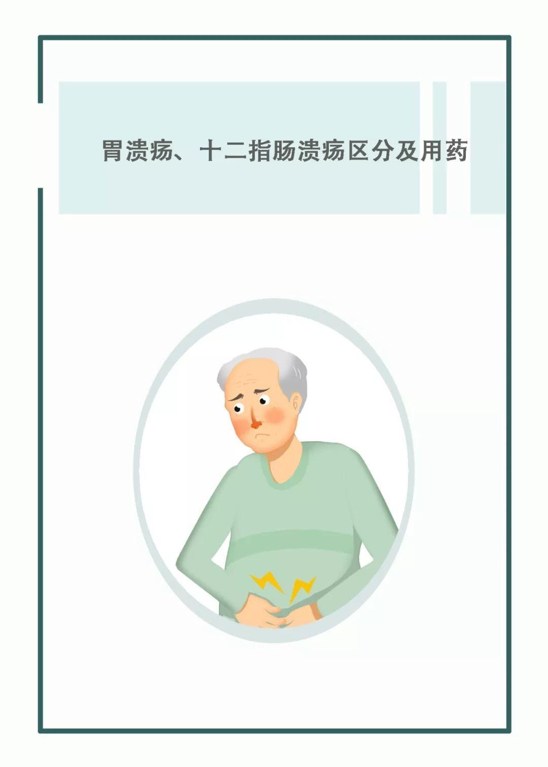 潰瘍 十二指腸
